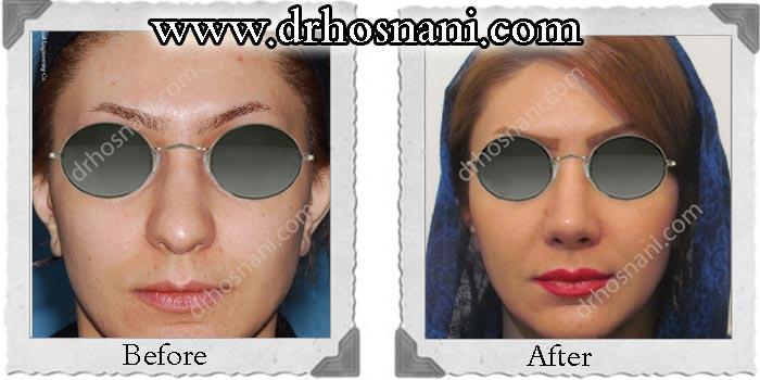 nose_surgery_121.jpg