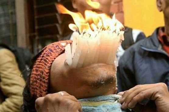 13 مداد و دهها شمع در دهان یک مرد + عکس , تصاویر دیدنی