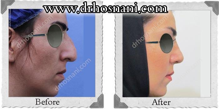 nose_surgery_125.jpg