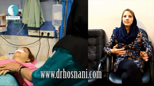 هزینه عمل بینی توسط دکتر حسنانی