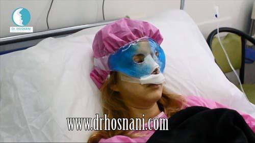 کمپرس سرد - جراحی بینی - دکتر حسنانی