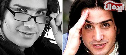 چهره های ایرانی، قبل از عمل بعد از عمل زیبایی , چهره های ایرانی