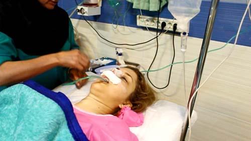 جراحی بینی دکتر حسنانی - ریکاوری بعد از جراحی