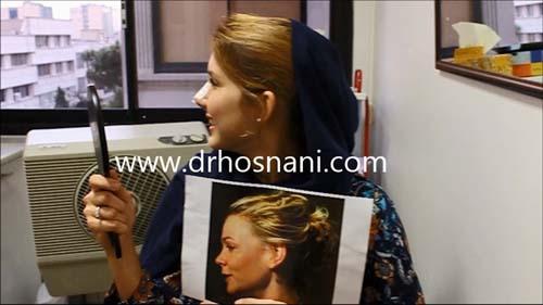 نتیجه جراحی بینی با دکتر حسنانی