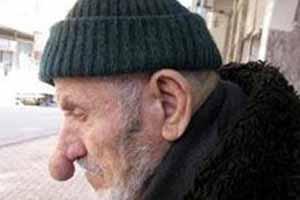 پیرمرد اهل ترکیه رکورد درازترین بینی جهان را شکست , جالب و خواندنی