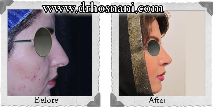 جراحی بینی دکتر حسنانی - ترمیم افتادگی نوک بینی