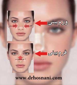 جراحی بینی دکتر حسنانی  - چسب زدن به بینی