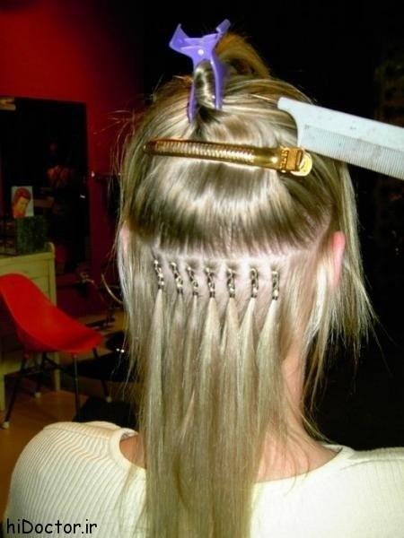 استنشن مو ومضرات آن