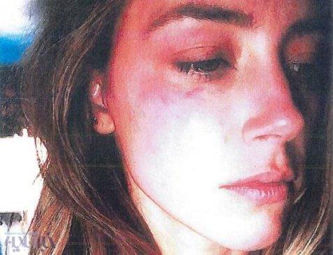 چهره کبود امبر هرد به دلیل کتک خوردن از جانی دپ! , چهره های معروف