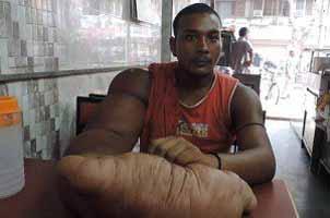 بیماری غول پیکری یک پسر جوان هندی , جالب وخواندنی
