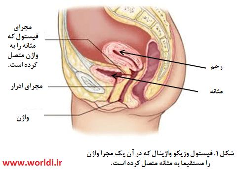 باز شدن مثانه به واژن