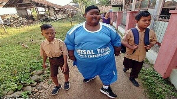 : چاق ترين کودک جهان را بشناسيد