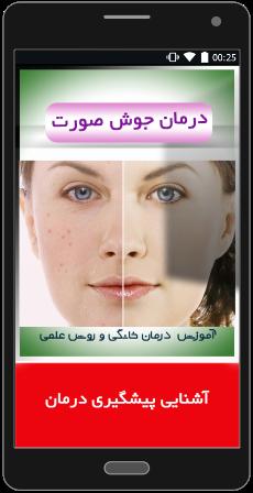 انواع جوش صورت و راه های درمان آ«
