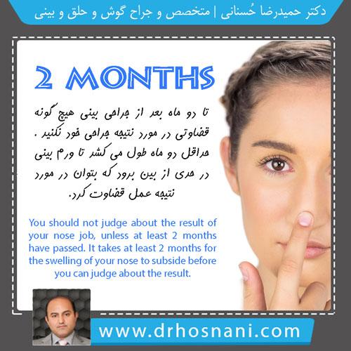 مشاوره با دکتر حسنانی - دوران نقاهت جراحی بینی