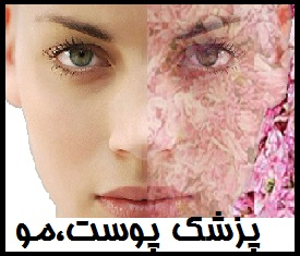 http://s7.picofile.com/file/8286113984/7599.jpg