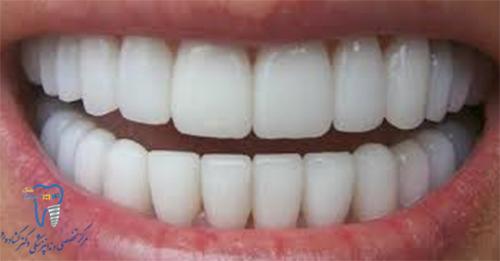 حساسیت یا درد دندان بعد از روکش کردن