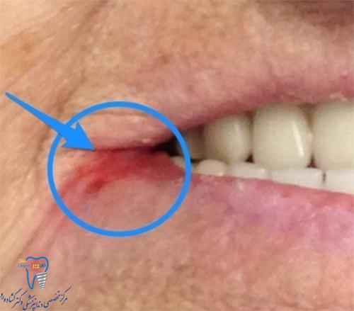 دندان مصنوعی چه مشکلاتی دارد؟