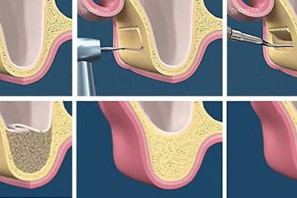 عمل جراحی لیفت سینوس پیش از کاشت ایمپلنت دندان