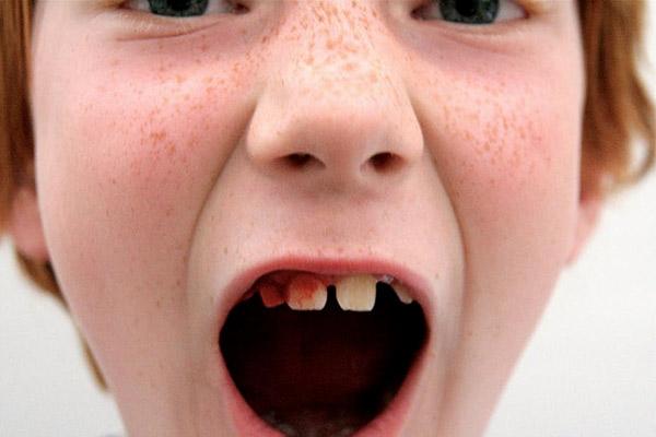 از چه سنی میتوان ایمپلنت دندان کاشت؟