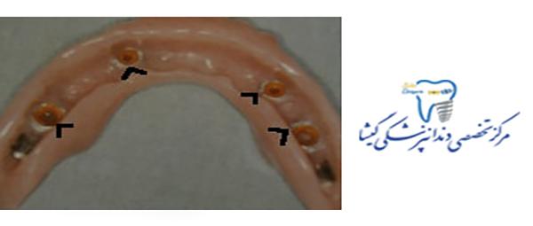اباتمنت دندان چیست؟