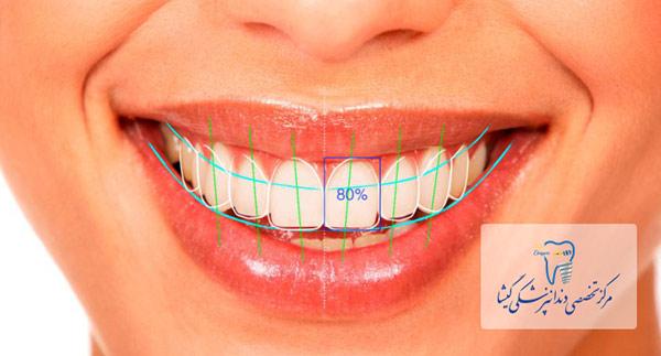 اشتباهات رایج در لمینت کردن دندانها