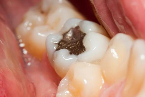 از کجا بدانیم باید پر شدگی دندان را عوض کنیم؟