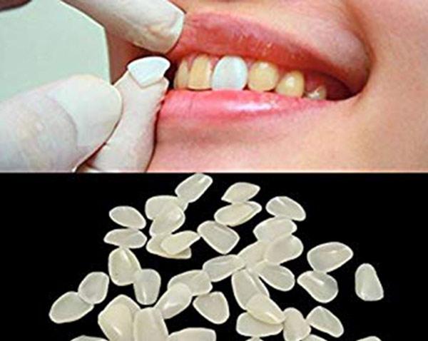 فواید لمینت خیلی نازک دندان