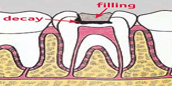 در چه شرایطی دندان پس از پر کردن نیاز به عصب کشی پیدا میکند؟