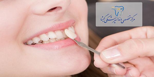 درمانهای اپن بایت یا به نرسیدن دندانهای جلویی در بزرگسالان