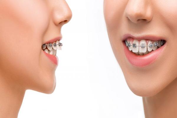 آشنایی با مشکلات بایت و نامرتبی دندانها