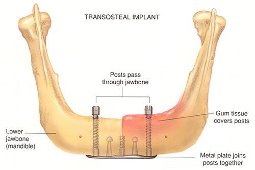 افزایش محبوبیت مینی ایمپلنت دندان