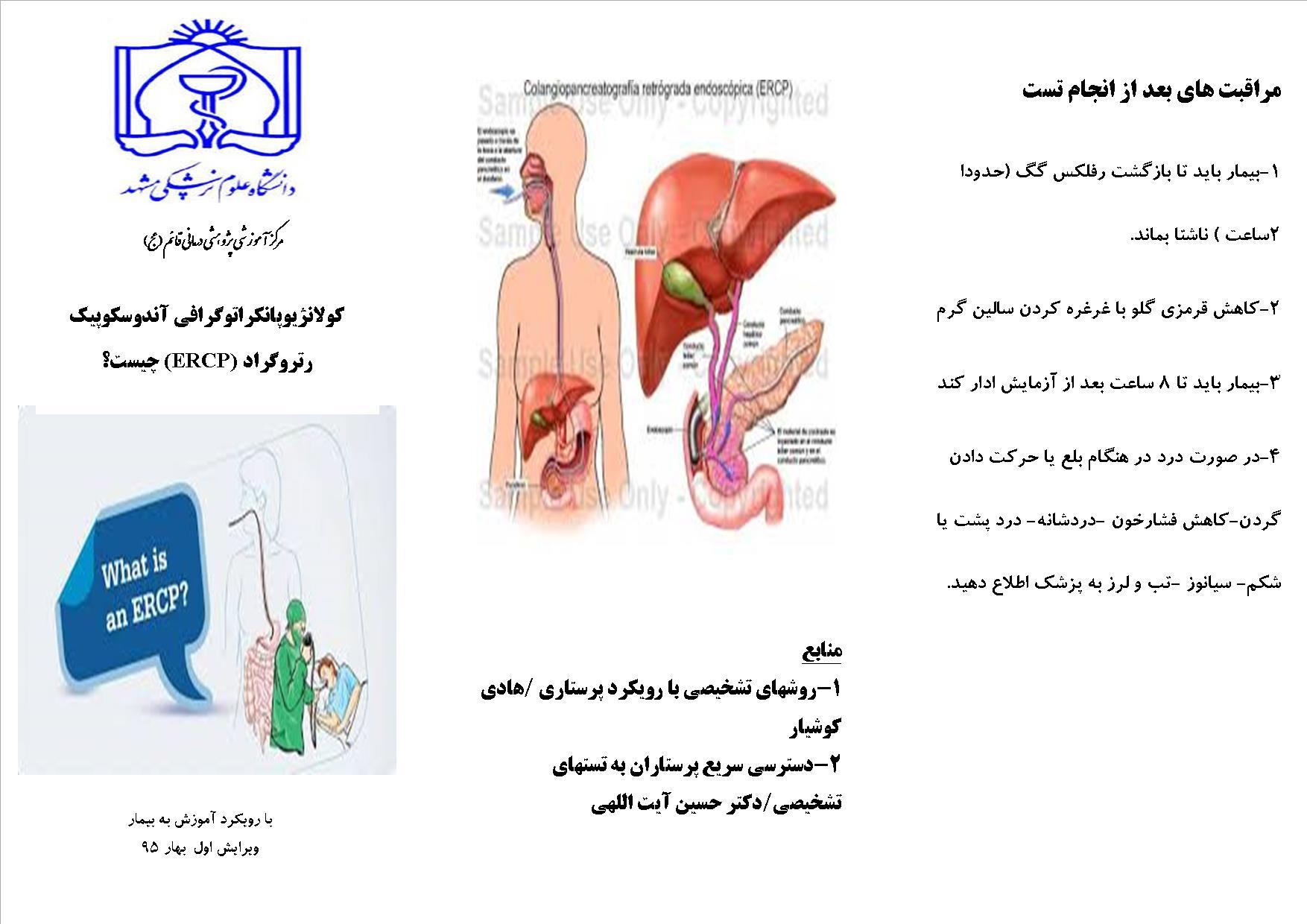 کولانژیوپانکرانوگرافی یا ERCP