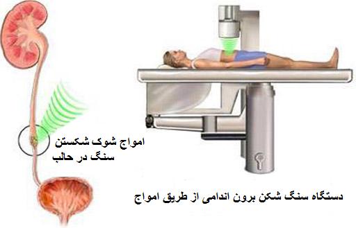سنگ شکنی برون اندامی | آموزش به بیمار بیمارستان قائم مشهد