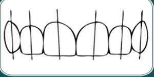 طراحی لبخند توسط دندانپزشک متخصص ترمیمی و زیبایی دندان