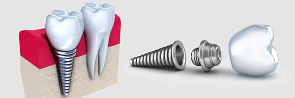 همه چیز در مورد ایمپلنت دندان