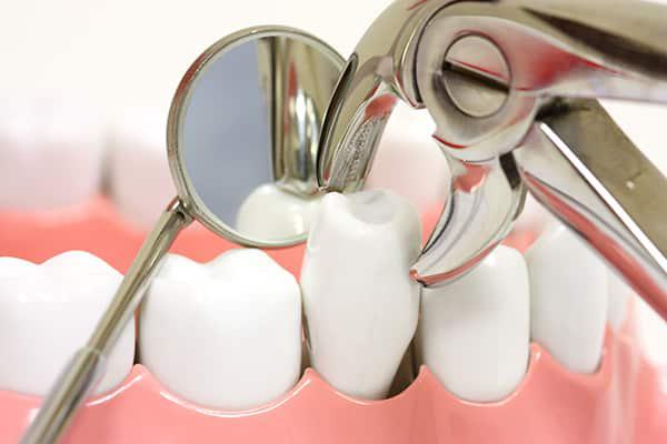 کشیدن دندان چگونه است؟آیا میتوان همزمان با کشیدن ایمپلنت کاشت؟