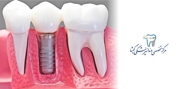 مراحل کاشت ایمپلنت دندان توسط متخصص ایمپلنت در تهران