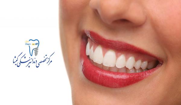 ایمپلنت (کاشت دندان) با استفاده از تکنولوژی دیجیتال توسط متخصص ایمپلنت