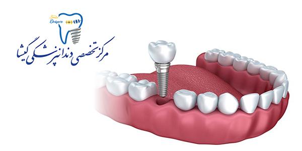 طول عمر ایمپلنت دندان (کاشت دندان)