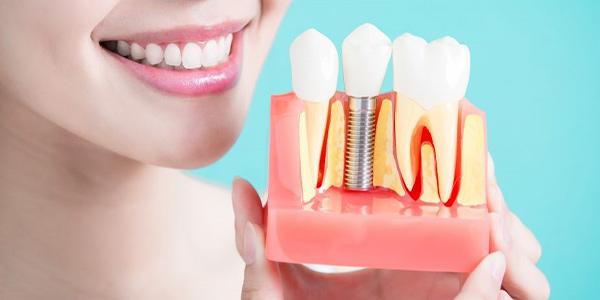 جراحی کاشت ایمپلنت دندان توسط فوق تخصص ایمپلنت در تهران