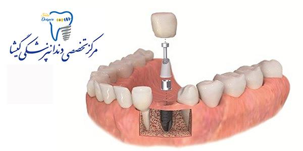 چرا باید ایمپلنت دندان بکاریم؟