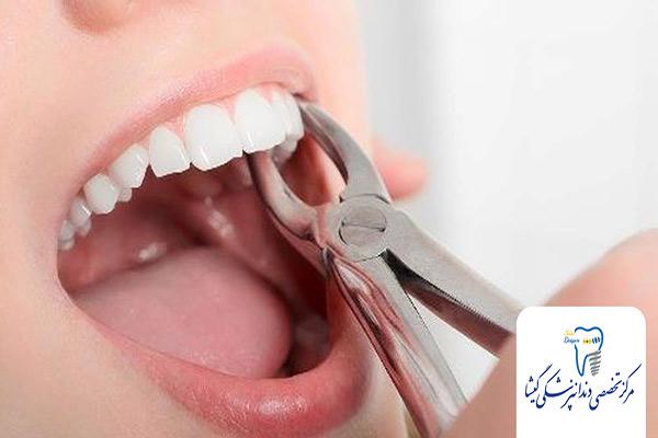 کشیدن یا نکشیدن دندان در ارتودنسی