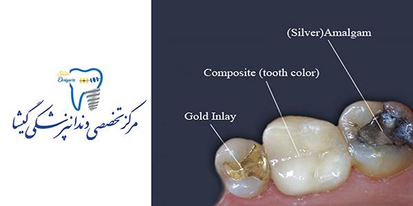 مقایسه آمالگام و کامپوزیت برای ترمیم دندان