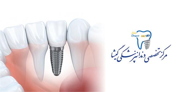 استفاده از لیزر در جراحی ایمپلنت