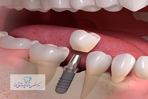 کاشت ایمپلنت دندان فوری توسط متخصص ایمپلنت در تهران