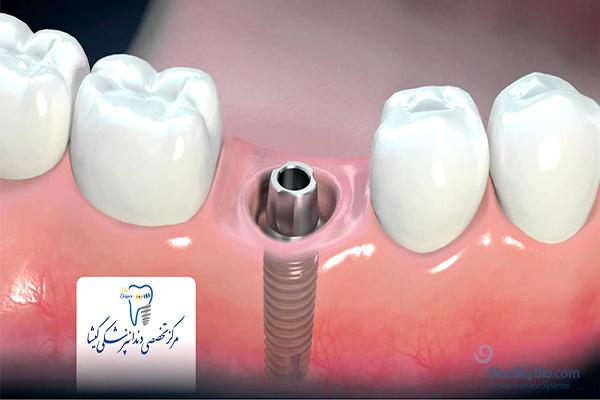 مراحل جایگزینی ایمپلنت دندان
