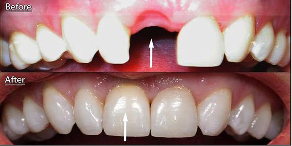 ایمپلنت دندان جلو
