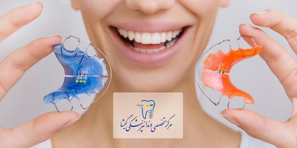 توصيه های متخصص ارتودنسی در تهران درباره ی ارتودنسی متحرك