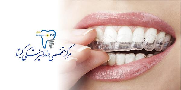 توصيه های متخصص ارتودنسی در تهران درباره ی ارتودنسی ثابت