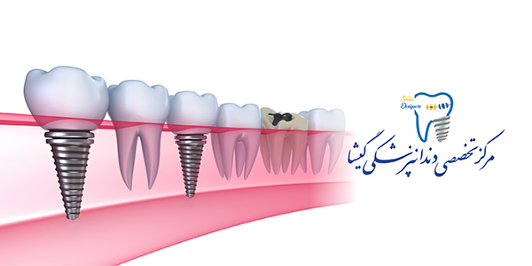 مزیتهای ایمپلنت(کاشت دندان) بر بریج و دندان مصنوعی متحرک